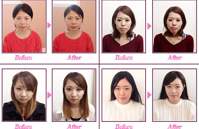 小顔矯正の結果